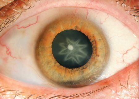 Зрачек глаза в форме звезды