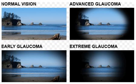 глаукома изменение зрения