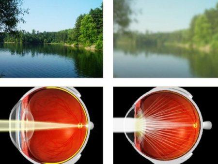 вид природы здоровым глазом и вид природы глазом с катарактой