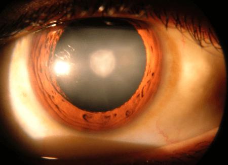 Фото катаракты