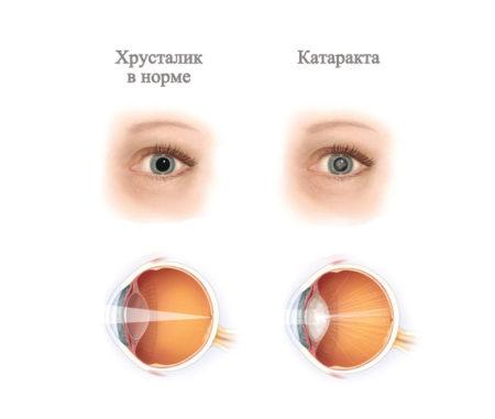 глаз с нормальным хрусталиком и глаз с катарактой