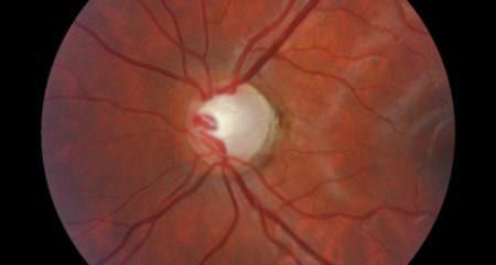 глаукома 2 стадии глаз больной