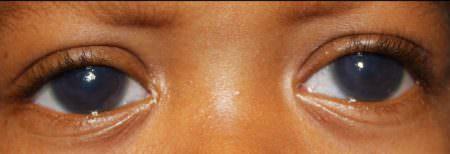 Врождённая глаукома глаза ребенка