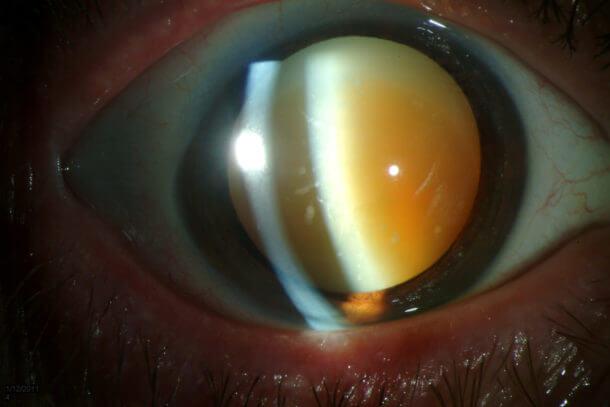 Инфекции признаком может пелена глазом быть перед