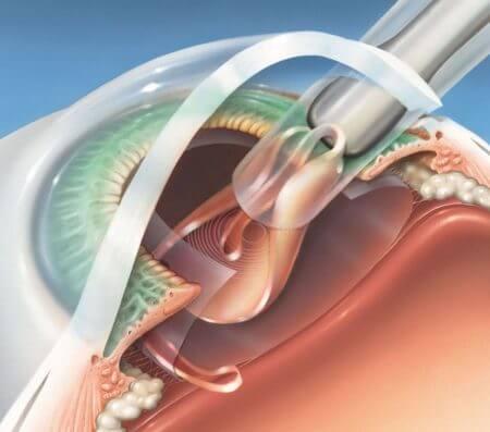 катаракта операция с заменой хрусталика