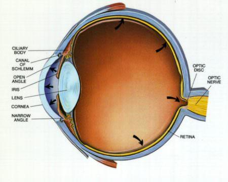 глаукома глаз больной