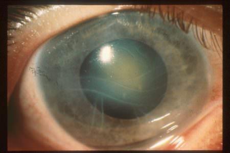 глаукома больной глаз