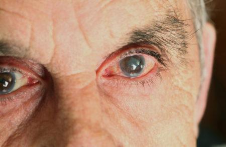 Мужчина с катарактой