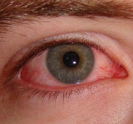 Воспалениек глаза