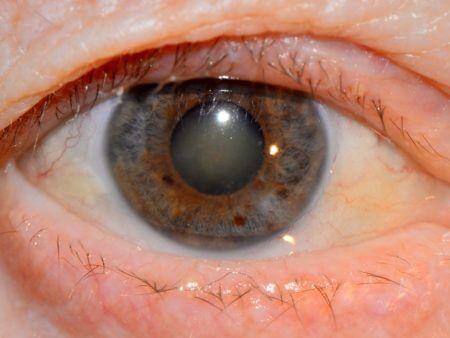 Глаз человека