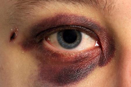 синяк вокруг глаза