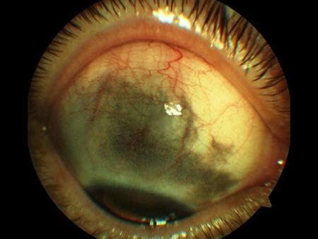 глаукома полная глаз больной