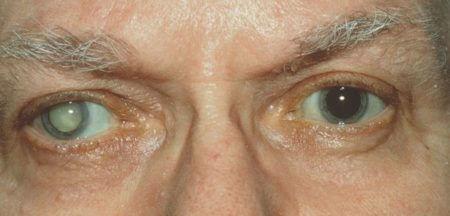один глаз с катарактой