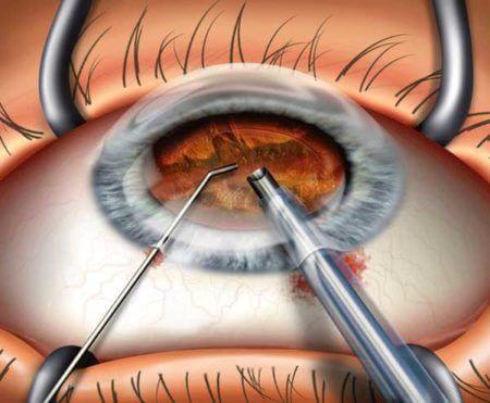 схема удаления катаракты