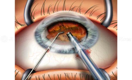 операция глаза больного катарактой факоэмульсификация