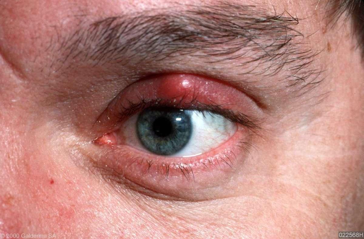 Боль над глазами причины