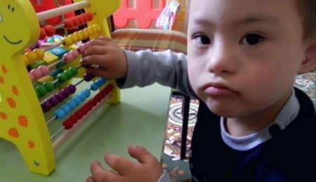 малыш с косоглазием играет
