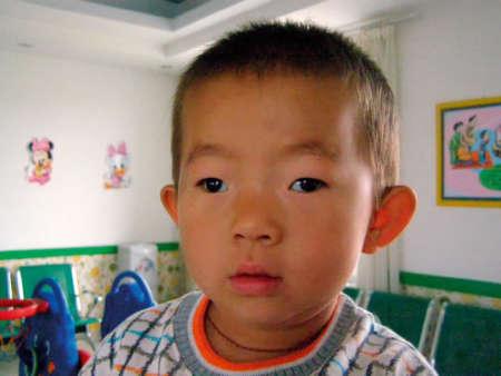 мальчик с косоглазием