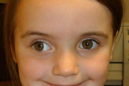 улыбающаяся девочка с косоглазием