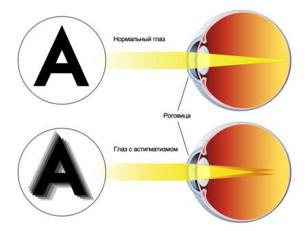 Сравнения нормального глаза и глаза с астигматизмом