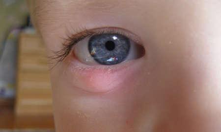 Халязион на нижнем веке у ребенка