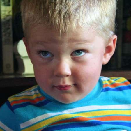 мальчик в яркой кофте с косоглазием