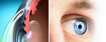 глаз вид внутри и снаружи