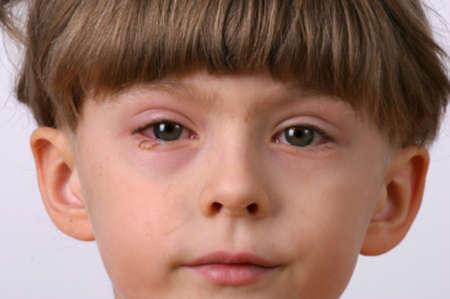 У ребенка красный воспаленный глаз