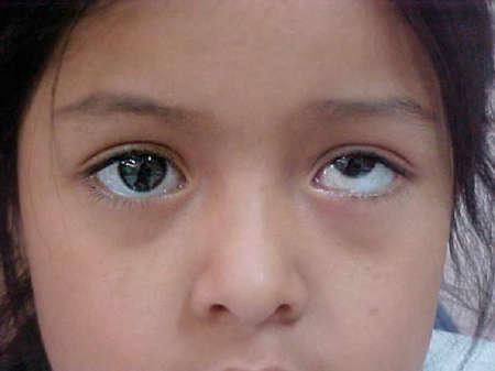 девочка с косыми глазами