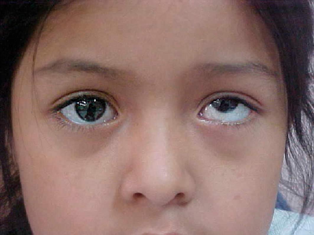 после окклюзии стали косить оба глаза дырочки