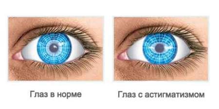 Глаз с астигматизмом и глаз в норме