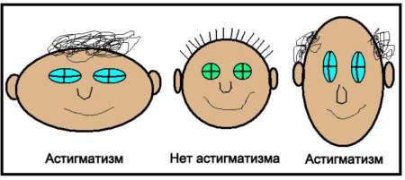 астигматизм и норма зрения