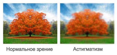 сравнение нормального зрения и зрения с астигматизмом
