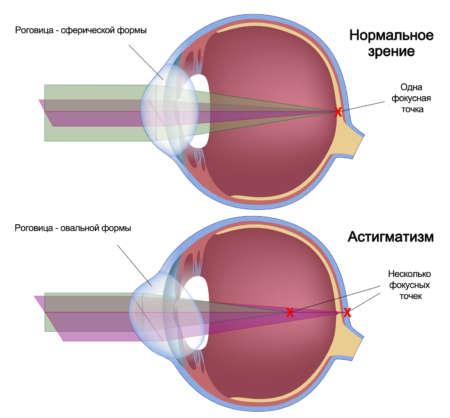 Номальное зрение и астигматизм