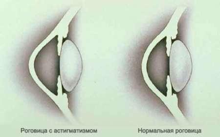 Роговица в норме и роговица с астигматизмом