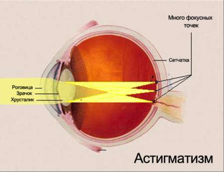 Схема глаза с астигматизмом