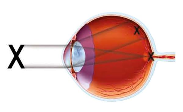 Сложный астигматизм обоих глаз: что это такое