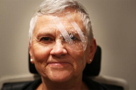 Женщина после операции на катаракту