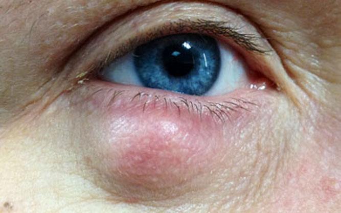 Отличия ячменя от халязиона: причины появления и дигностика