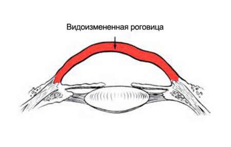 Форма роговицы при астигматизме
