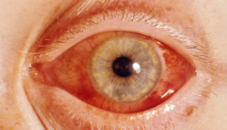 Покраснение глаза при глаукоме