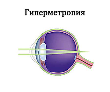 Гиперметропия схема глаза