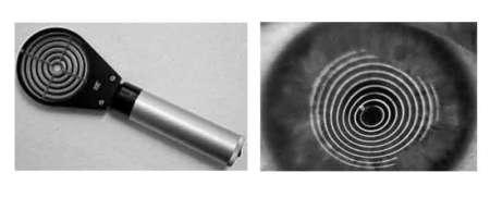 кератоскоп и глаз с отражением кератоскопа