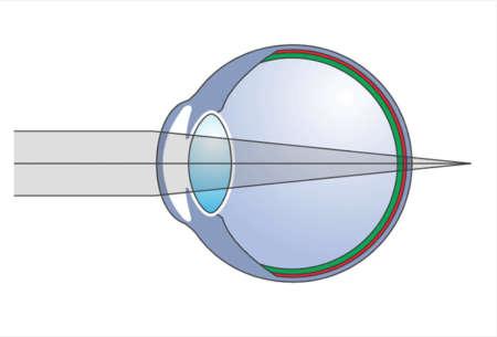 Схематическое представление глаза с гиперметропией