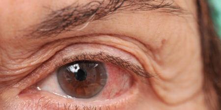Глаз женщины с глаукомой