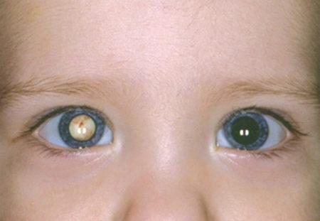 Ребенок с катарактой