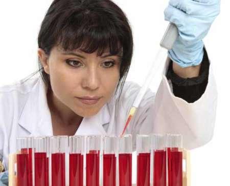 Лаборант, общий анализ крови