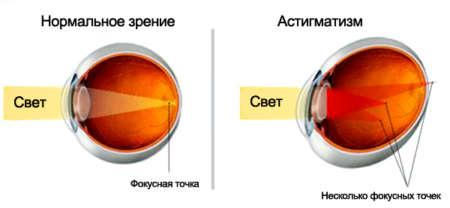 Нормальное зрение и астигматизм