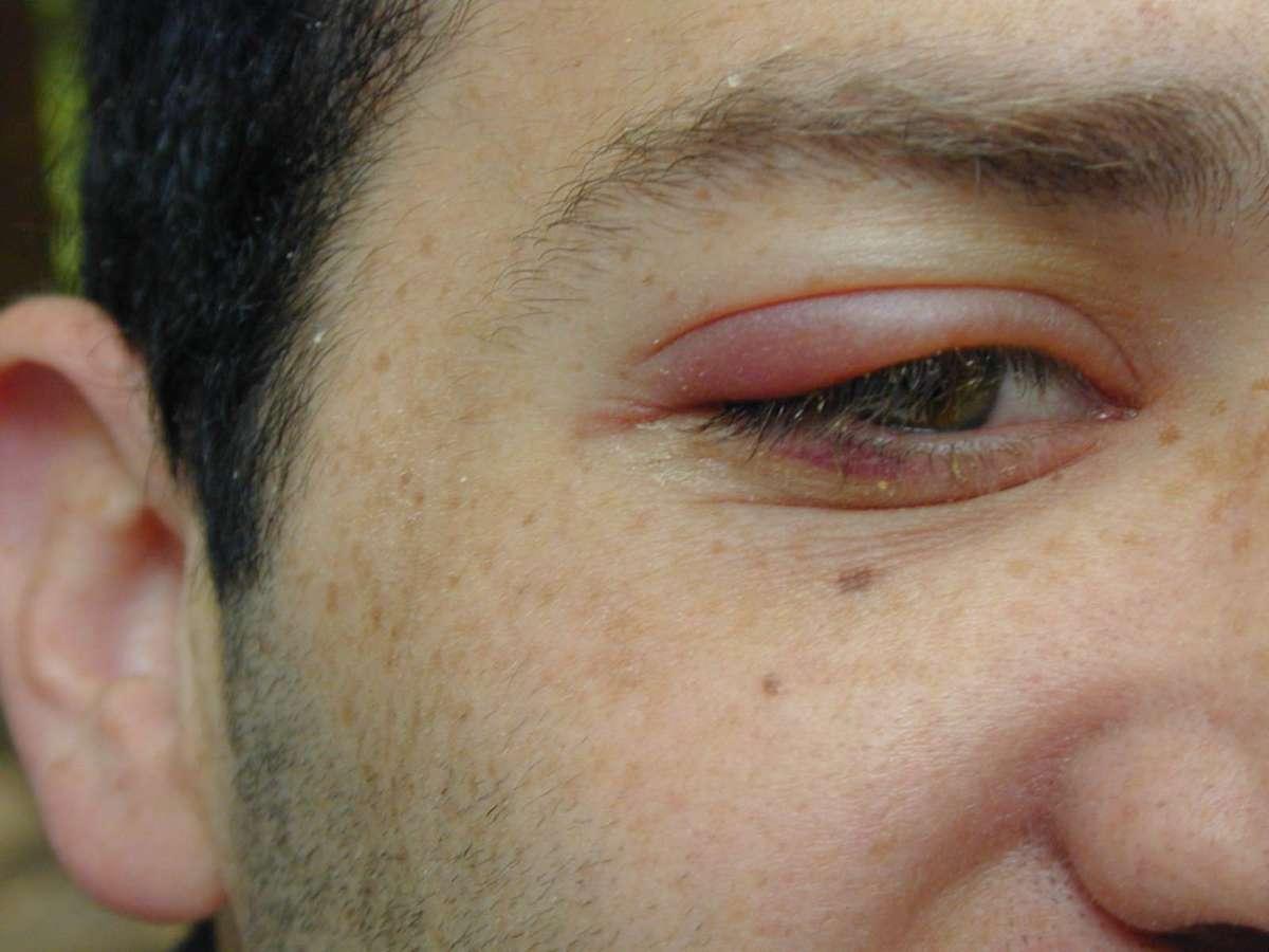 Внутренний ячмень на нижнем веке: причины появления, методы лечения, возможные осложнения