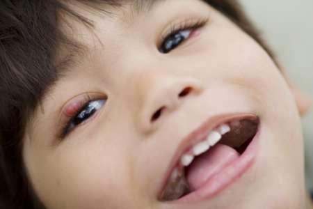 Улыбающийся малыш с ячменём на глазу